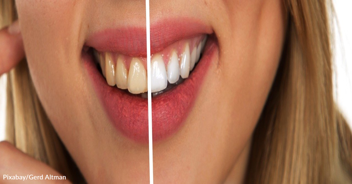 Dentist Issues Warning After Dangerous Teeth-Whitening 'Hack' Goes Viral