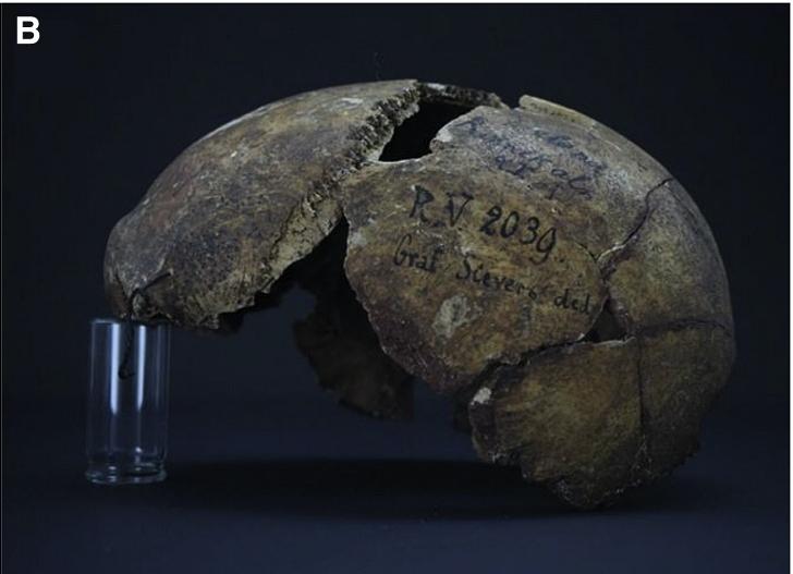 RV 2039 skull from Latvia