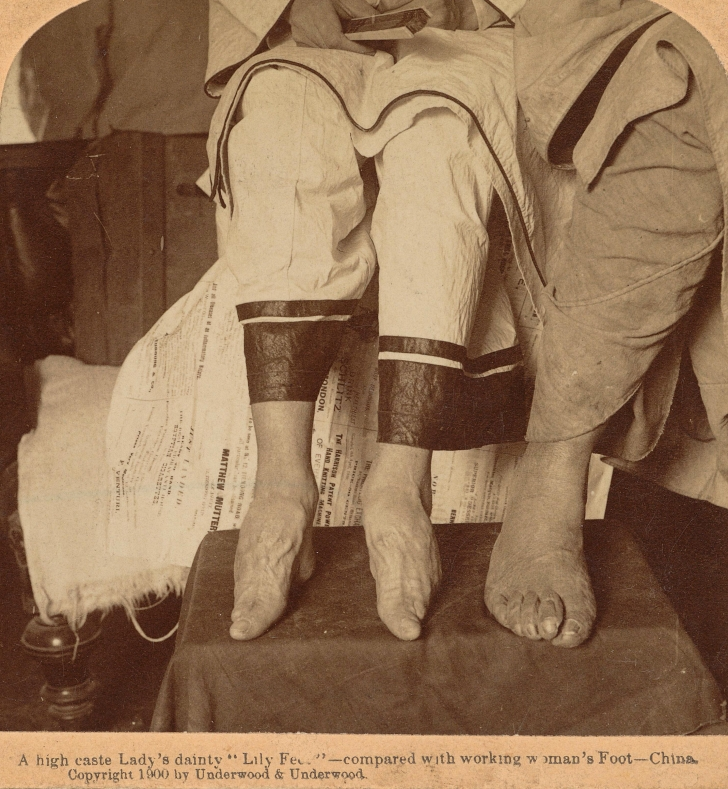 bound feet next to the foot of a peasant woman 1900